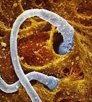 精子图片(与卵子的结合过程)