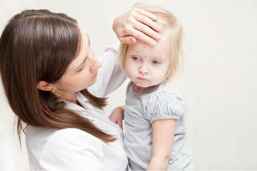 带状疱疹是怎么引起的 带状疱疹临床表现