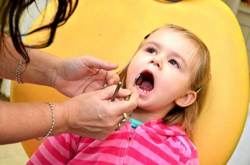 孕妇能不能补牙    孕妇牙齿痛怎么办