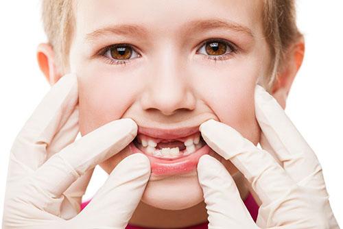 孩子换牙需要补钙吗 孩子换牙时期注意事项