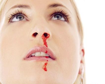 孕妇鼻子出血怎么办呢 你不知道的方法